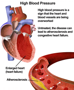 Vector diagram explaining hypertension